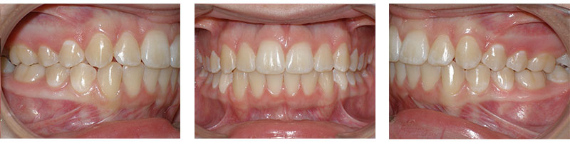 Before and After - Birmingham and Milford Orthodontic